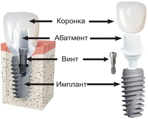 Импланты зубов виды и цены имплантация зубов воронеж цена