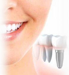 Имплантация зубов в Воронеже цена. Импланты зубов виды, отзывы, цены