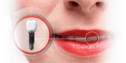 Имплантация зубов в Воронеже цена
