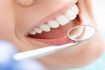 Гигиена полости рта. Чистка зубов от камня Воронеж