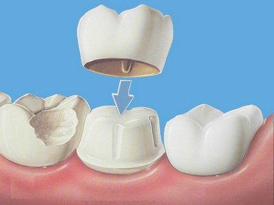 Металлокерамические безметалловые коронки на зубы диоксид циркония