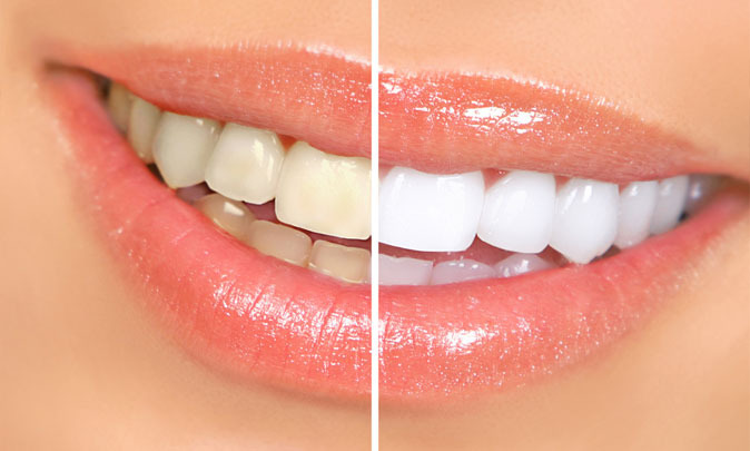 Чистка зубов от зубного камня. Гигиена в пародонтологии