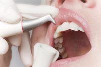 чистка зубов пример работ