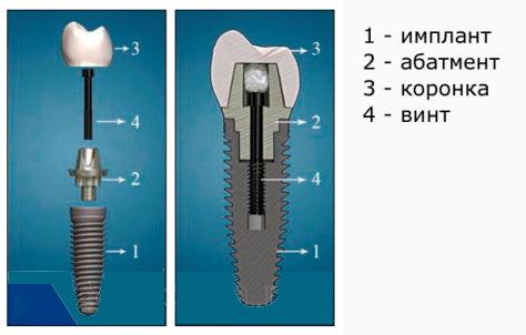 Имплантация зубов в Воронеже. Цены имплантация зубов Воронеж