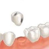 Удалить зуб