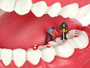 Восстановить зуб