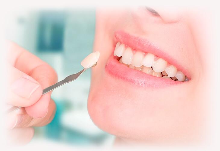 Стоимость восстановление зуба Восстановить зуб