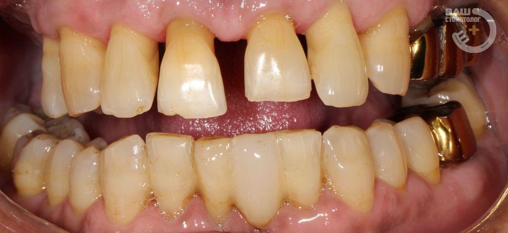 Протезирование зубов в Воронеже,чистка зубов.Имплантация, гигиена