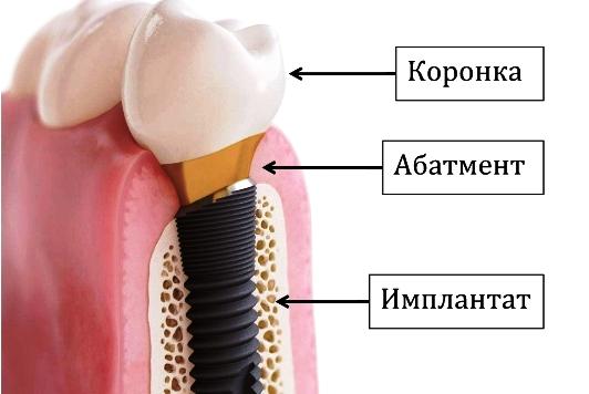 Имплантация зубов. Виды и цены имплантов. Имплантация под ключ