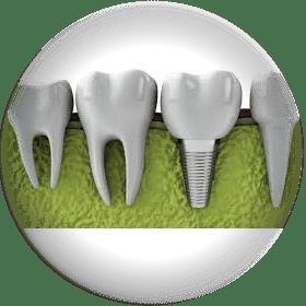 Имплантация зубов Воронеж. Акция отличная цена