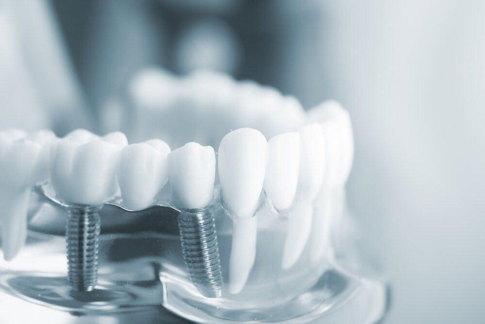 Примеры работ стоматология