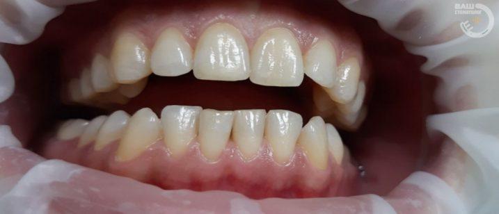 Отбеливание зубов примеры в Воронеже