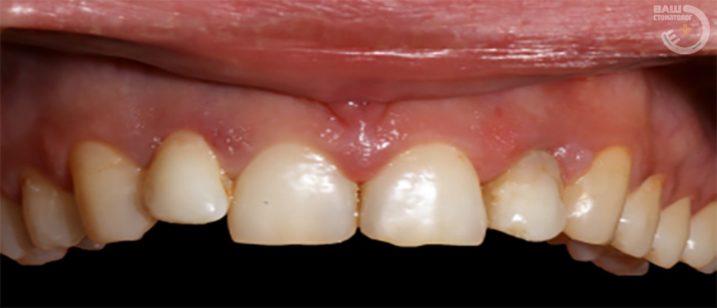 пример реставрация зубов