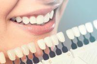 Отбеливание зубов примеры в Воронеже фото работ стоматология