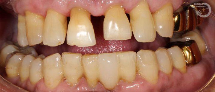 Примеры протезирование зубов в Воронеже