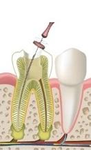 Лечение пульпит зуба в Воронеже. Цены на лечение пульпита зуба