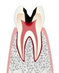 Лечение зубов в Воронеже. Цены на лечение зубов. Клиника лечение