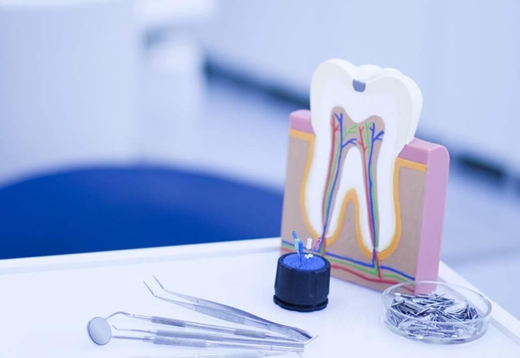 Лечение периодонтит зуба в Воронеже. Цены на лечение периодонтита