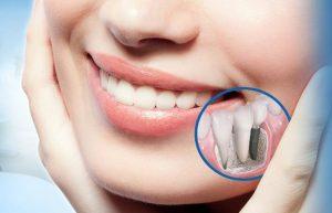 имплантация зубов отзывы