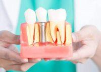 Импланты зубов виды, отзывы, цены