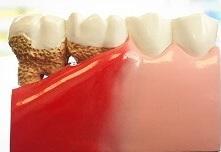 Лечение десен зубов в Воронеже