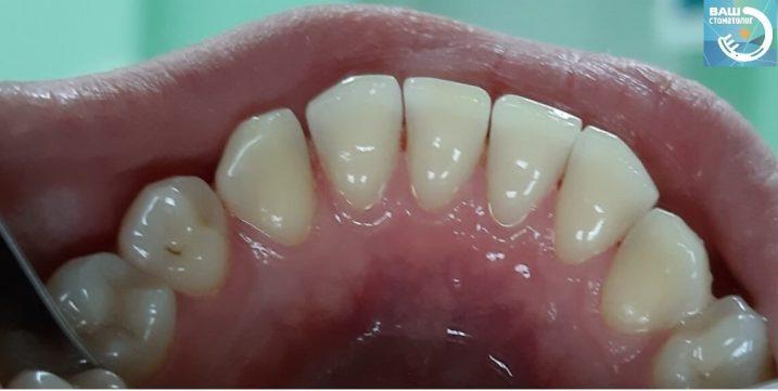 Пример гигиена зубов