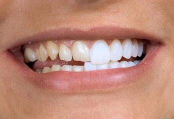 Виниры на зубы отзывы