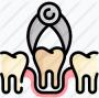 извлечение зубов