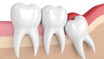 зуб мудрости ультразвуком