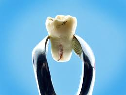 щипцы зуб