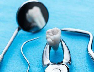 Удаление зубов ультразвуком