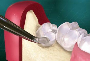 Атравматичное удаление зубов