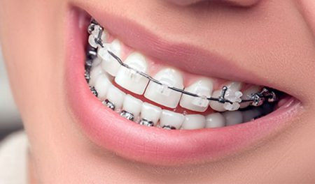 Фото работ стоматология