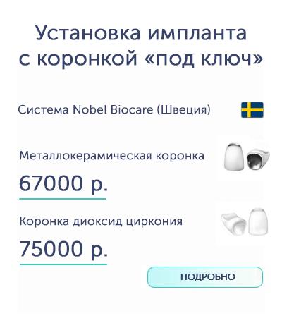 Коронка на имплант Воронеж