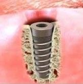 Установка имплантов виды