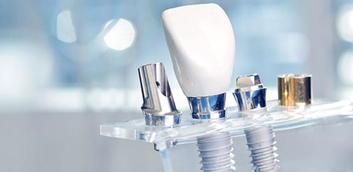 Виды имплантация зубов под ключ