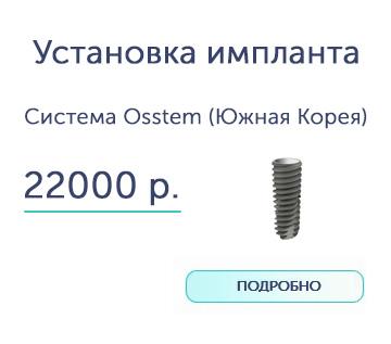 Установка имплантов зубов в Воронеже