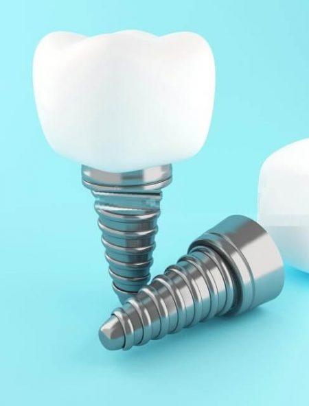 Акция импланты зубов
