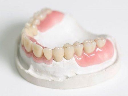 Съемные протезы для зубов