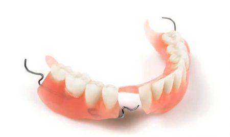 нейлоновый бюгельный протез зубов